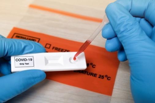 img-COVID-19 Antibody Testing