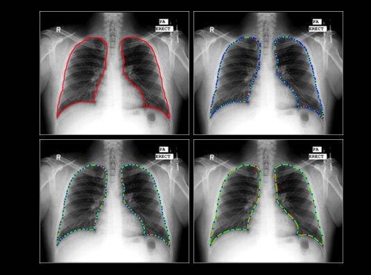 img-AI in Medical Imaging